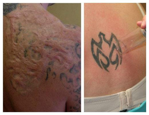 borrar tatuajes métodos caseros
