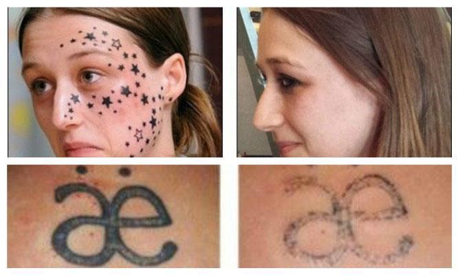 Precio de borrar tatuajes