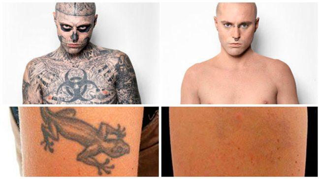 crema para borrar tatuajes