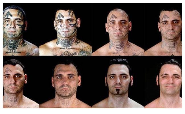 quitar un tatuaje laser